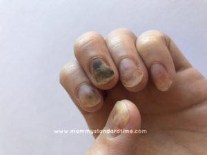 fingernails damaged by chemo