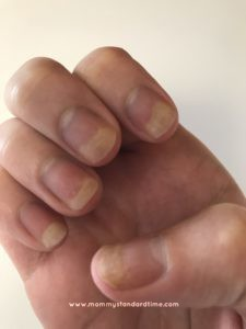 fingernails post-chemo right hand