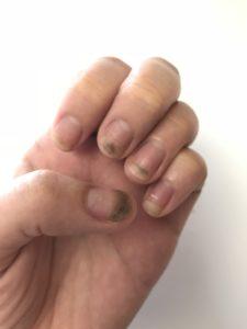 fingernails healing post-chemo