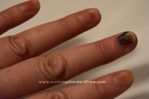 brown fingernails from chemo