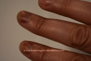brown and lifting fingernails from chemo