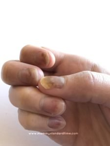 fingernails damaged by chemo