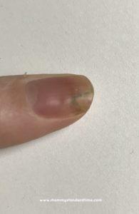 fingernail post-chemo